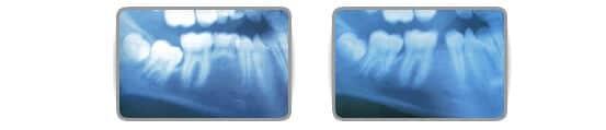 Présence d'une dent surnuméraire