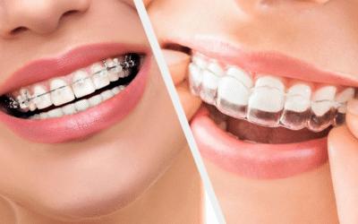 Guide sur les différents types d'appareils en orthodontie chez l'adulte