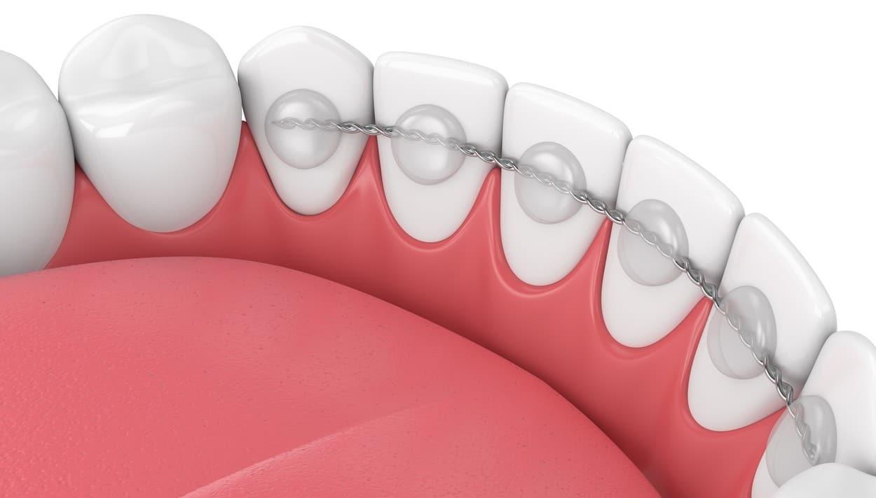 fil de contention orthodontie paris orthodontiste