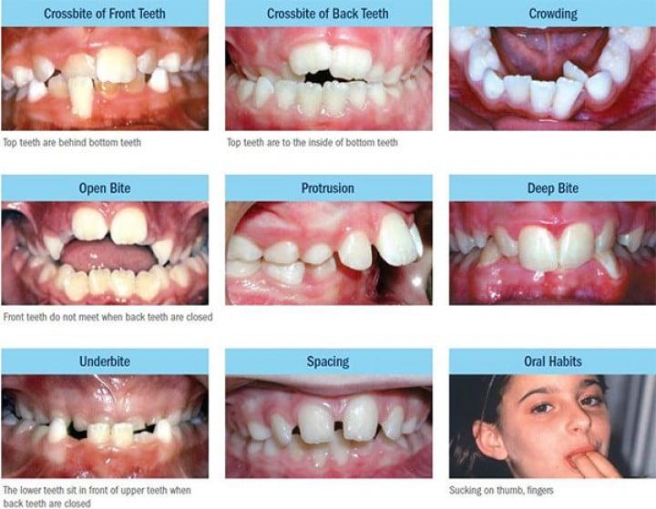 malocclusions chez l'enfant orthodontie interveptive
