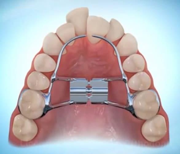 plaque palatine orthodontie enfant